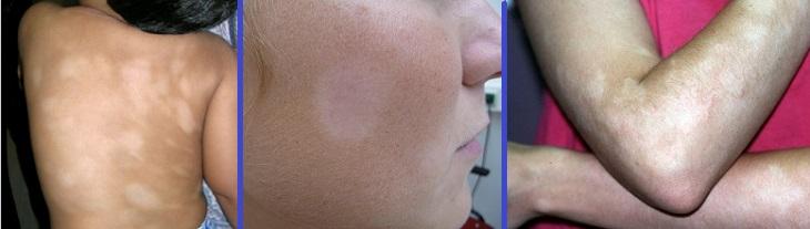 Белые пятна на коже лишай лечение народными средствами thumbnail