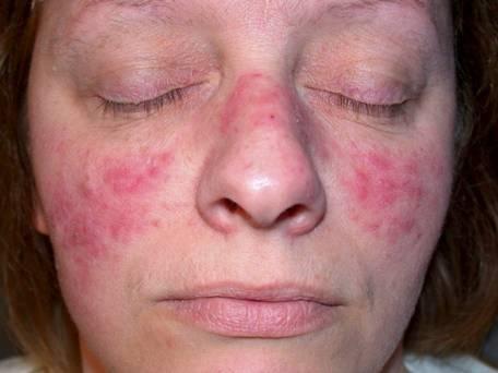 Микроспория на лице