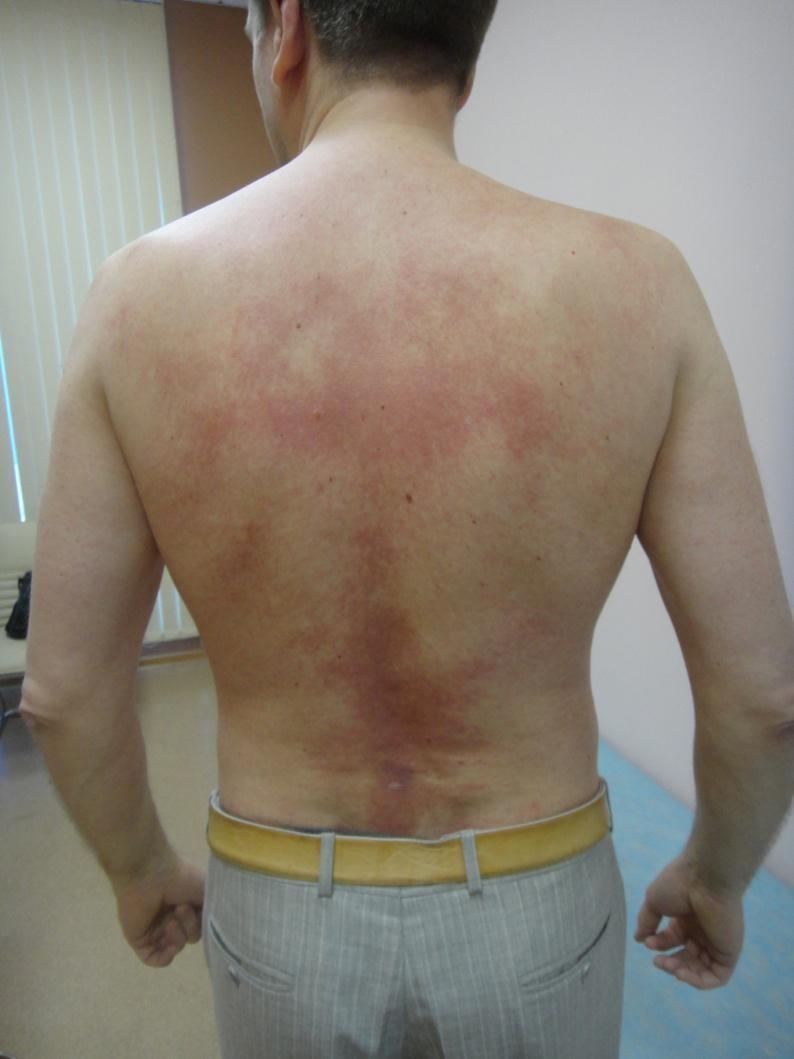 Болезнь Девержи на спине
