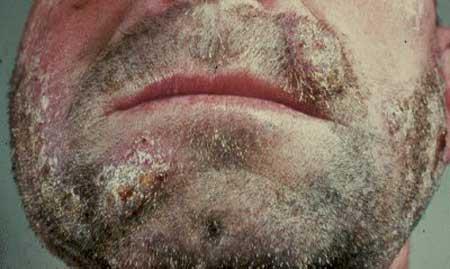 Микроспория на бороде