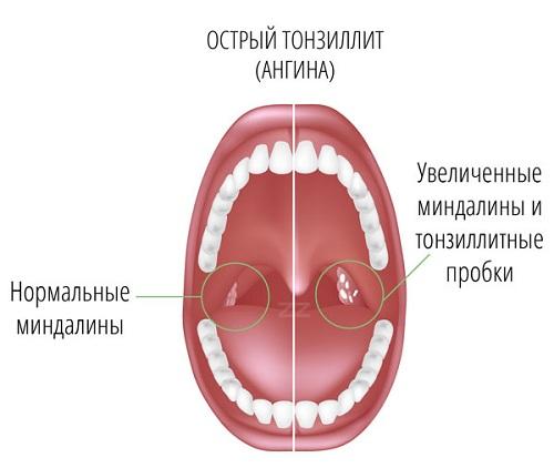 Нормальные и увеличенные миндалины