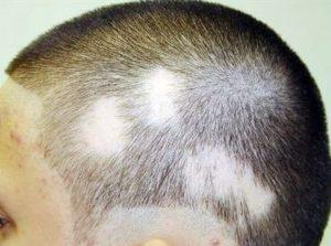 Потеря волос без возможности их восстановления
