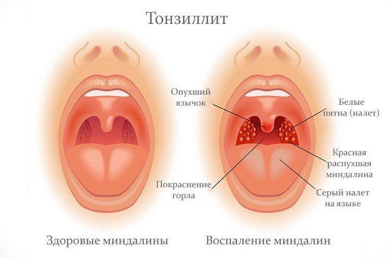 Здоровые и воспаленные миндалины