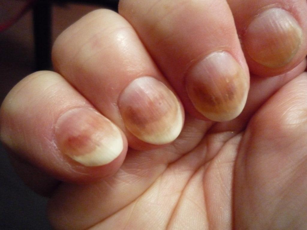 Стригущий лишай на ногтях