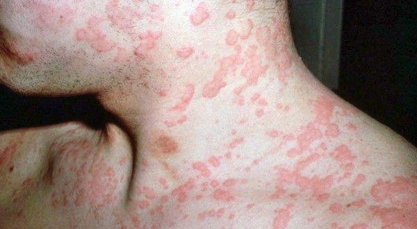 Генерализованное поражение кожи