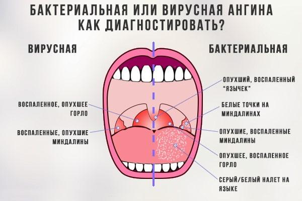 Отличие ангин