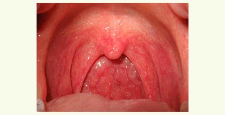 Катаральная ангина у детей симптомы и thumbnail