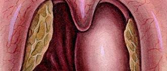 Флегмонозная ангина