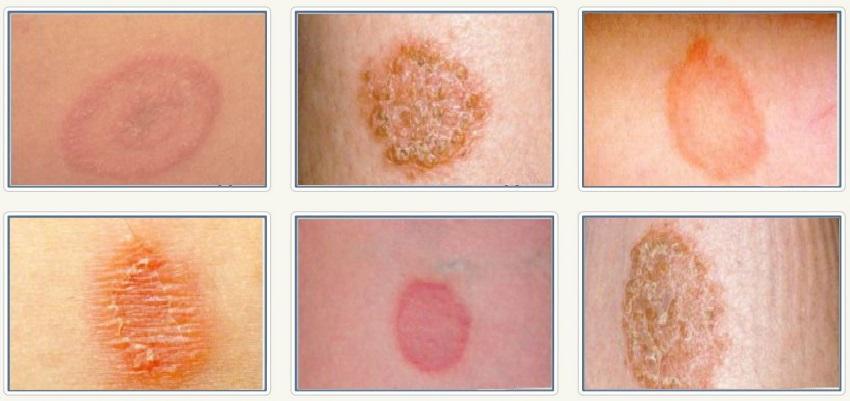 Монетовидный или узловатый дерматит thumbnail