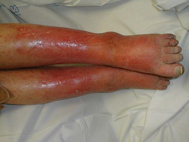 Огрубение кожи и пигментация при варикозной экземе