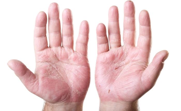Корочки и шелушение при аллергической экземе