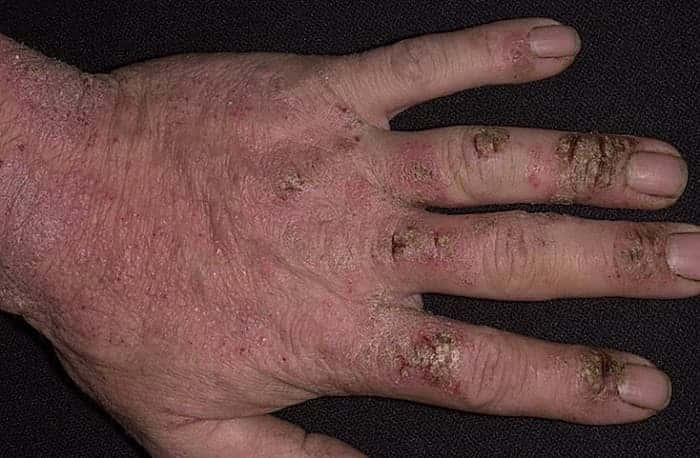Хроническая форма экземы кистей рук