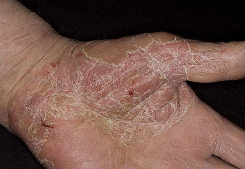 Трещины и шелушение при экземе