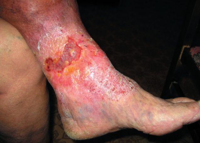 Последствия не лечения варикозной экземы
