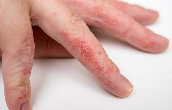 Экзема между пальцами