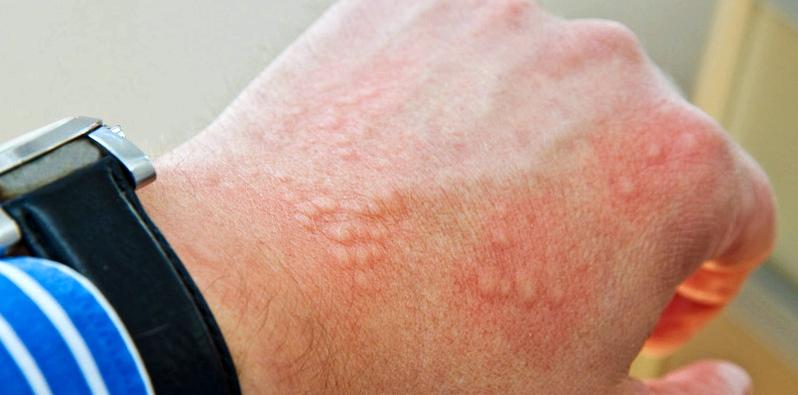 Дисгидротическая экзема кистей рук