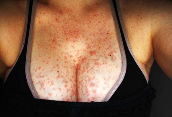 Аллергический дерматит от антибиотиков