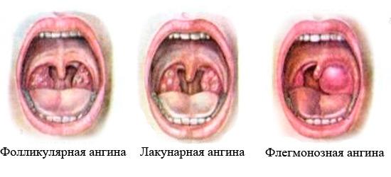 Бактериальные ангины