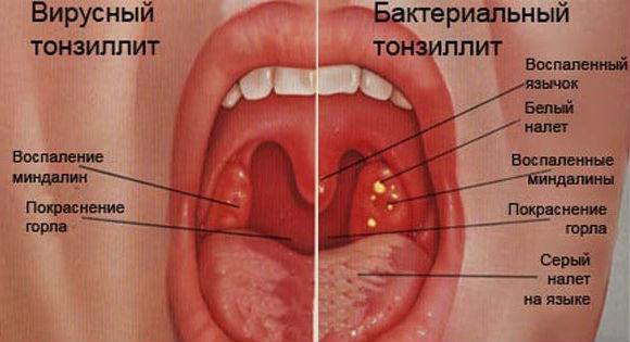 Различия вирусной и бактериальной ангины