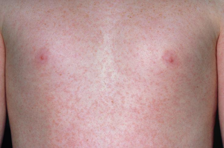 Сыпь на теле при скарлатине