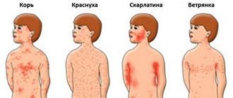 Сыпь при скарлатине