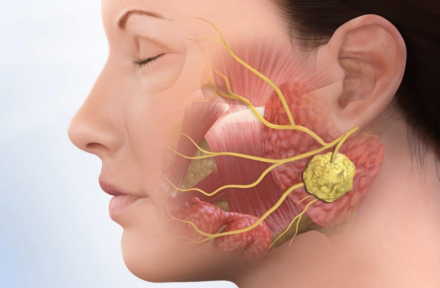 Распространение ангины по лимфе